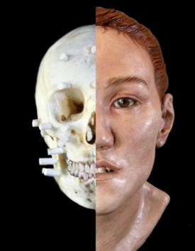 image of karen t. taylor facial reconstruction